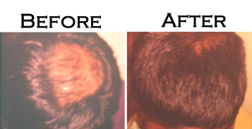 Before-After Images